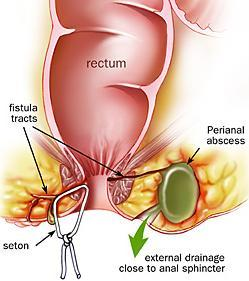 perianal_abscess_1